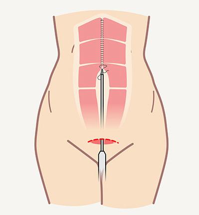 Эндоскопическая абдоминопластика