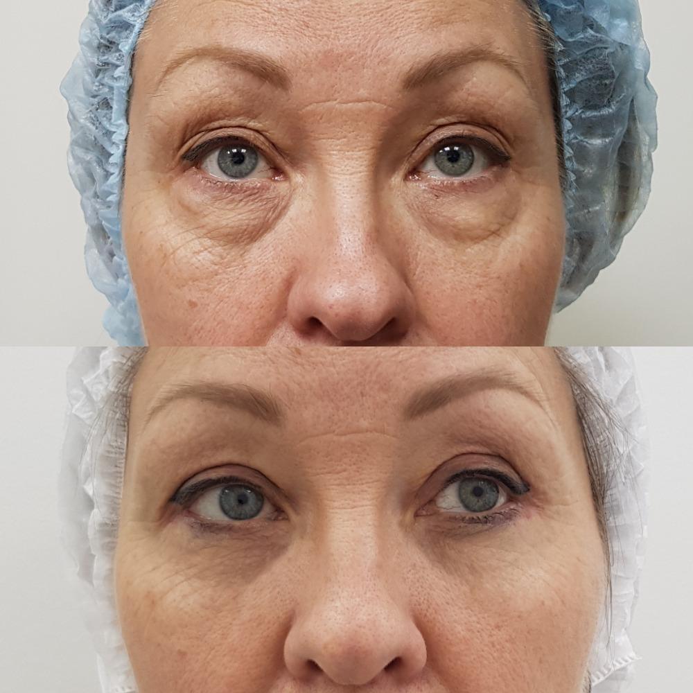 Круговая блефаропластика: убрал мешки под глазами, нависшие верхние веки