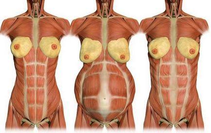 Нет диастаза / Диастаз во время беременности / Диастаз после родов