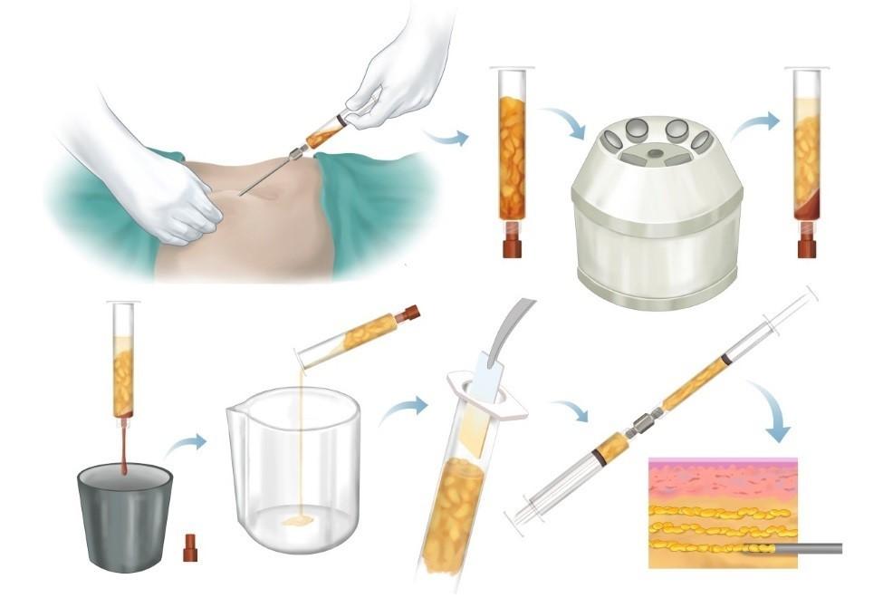 Процесс липофиллинга